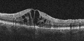 OCT : Œdème maculaire avant traitement par Dexaméthasone