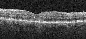 OCT : Œdème maculaire après traitement par Dexaméthasone