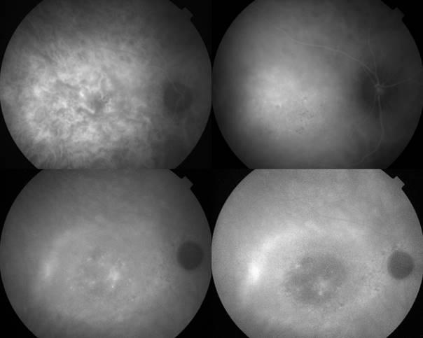 ICG : Perfusion intense au début et lavage du colorant à la fin