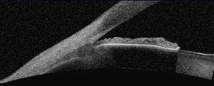 Angle irido-cornéen